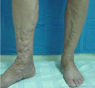 varices-extremidades-inferiores