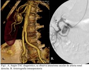 angio-tac-aneurisma