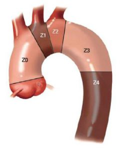 arteriasubclavia