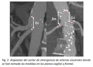 arterias-viscerales